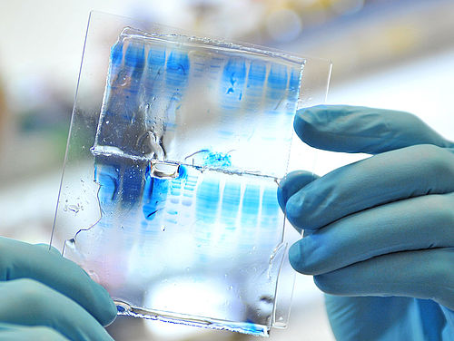 Gel electrophoresis, in which proteins can be separated with the help of polyacrylamide gel