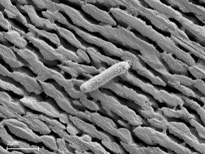 Nanoporöse Metallmembran