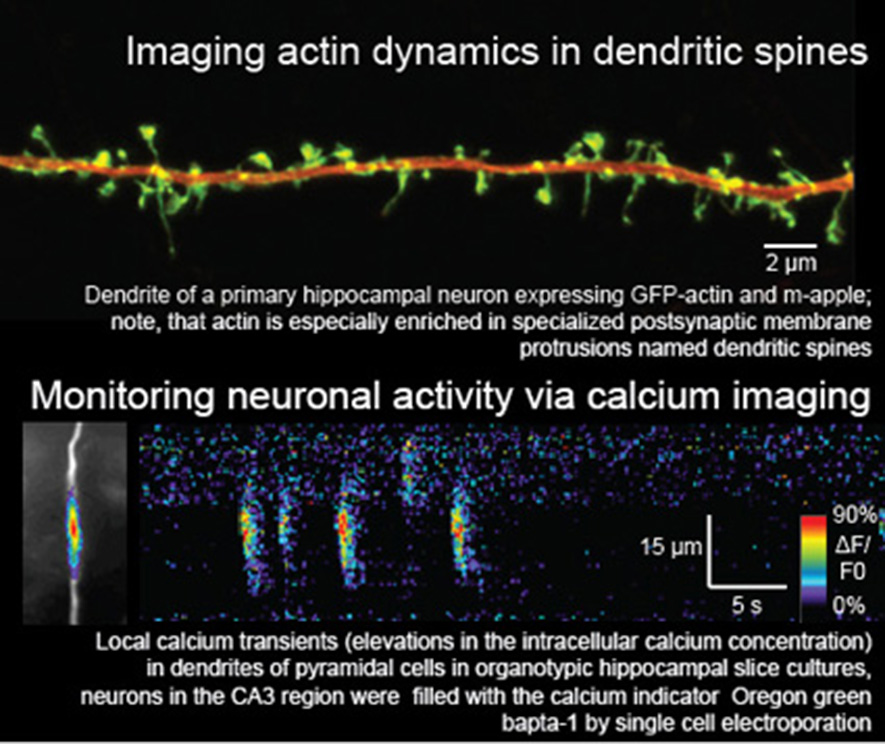 Imaging actin dynamics in dendritic spines